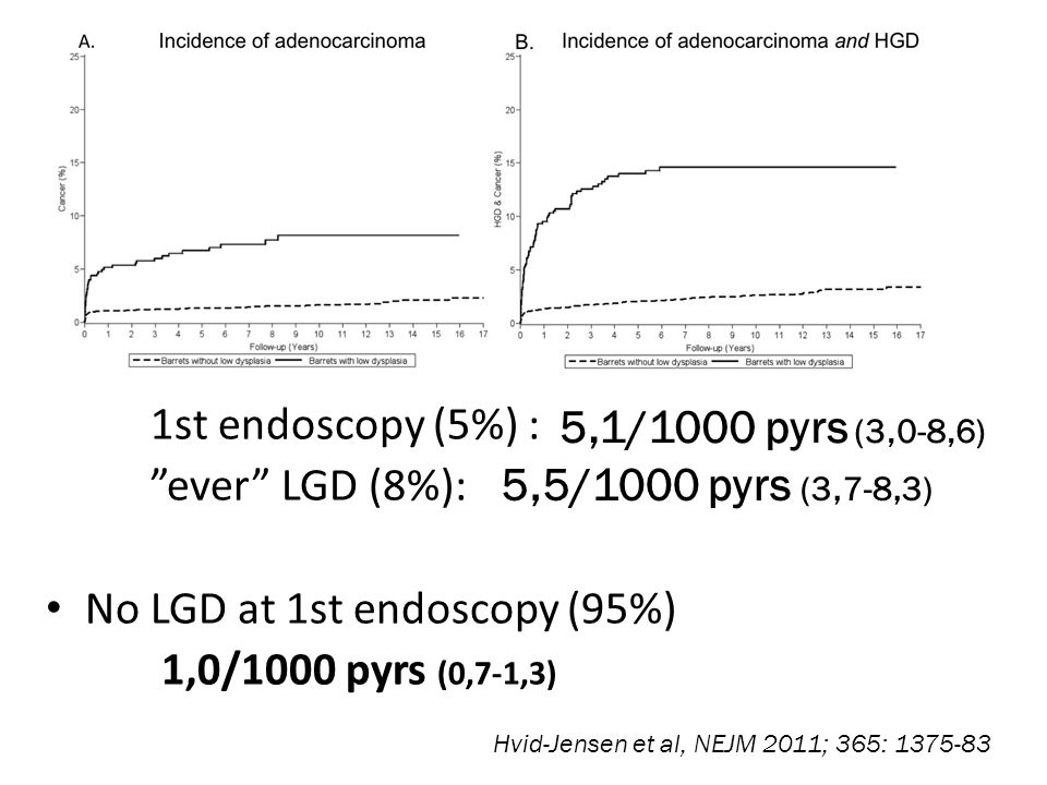 """Study of 11.028 patients with BE Are there High-risk subgroups ? Low Grade Dysplasi (LGD) 1st endoscopy (5%) : """"ever"""" LGD (8%): No LGD at 1st endoscop"""