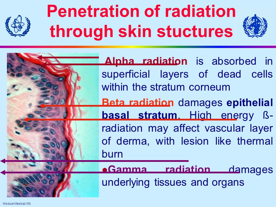 Module Medical XIII. 11 Penetration of radiation through skin stuctures Alpha radiation is absorbed in superficial layers of dead cells within the str