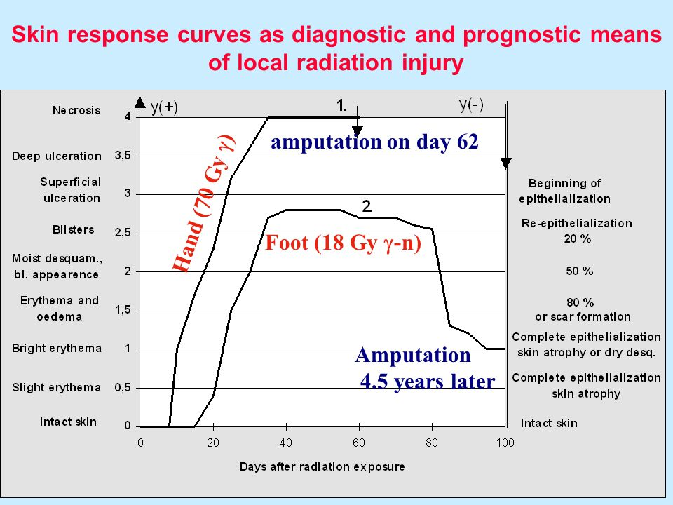 Module Medical XIII. 22 Skin response curves as diagnostic and prognostic means of local radiation injury Hand (70 Gy  ) Foot (18 Gy  -n) amputation