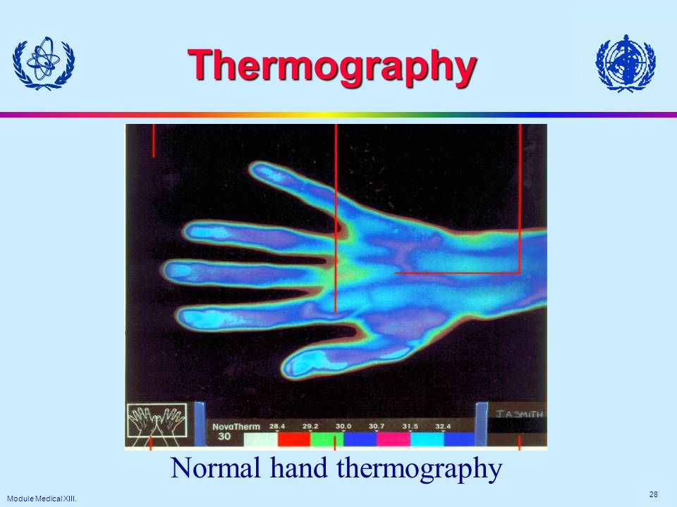 Module Medical XIII. 28 Thermography Normal hand thermography