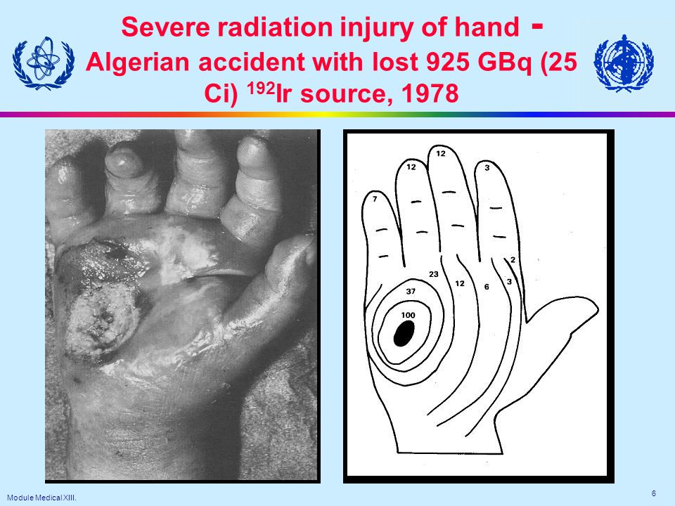 Module Medical XIII. 6 Severe radiation injury of hand - Algerian accident with lost 925 GBq (25 Ci) 192 Ir source, 1978