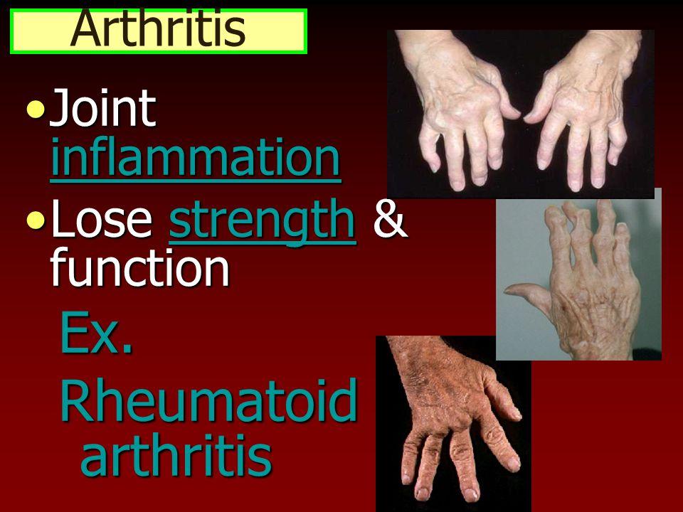 Arthritis Joint inflammationJoint inflammation Lose strength & functionLose strength & functionEx.