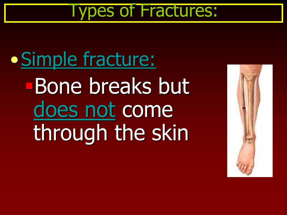 Simple fracture:Simple fracture:  Bone breaks but does not come through the skin Types of Fractures: