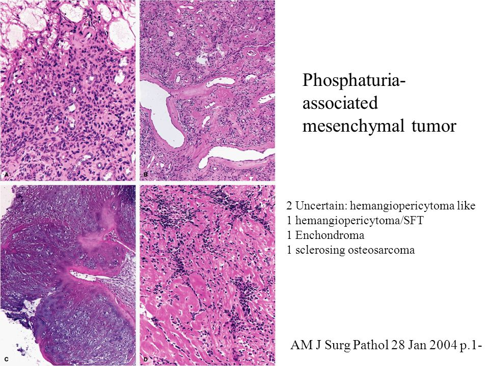 Phosphaturia- associated mesenchymal tumor 2 Uncertain: hemangiopericytoma like 1 hemangiopericytoma/SFT 1 Enchondroma 1 sclerosing osteosarcoma AM J Surg Pathol 28 Jan 2004 p.1-