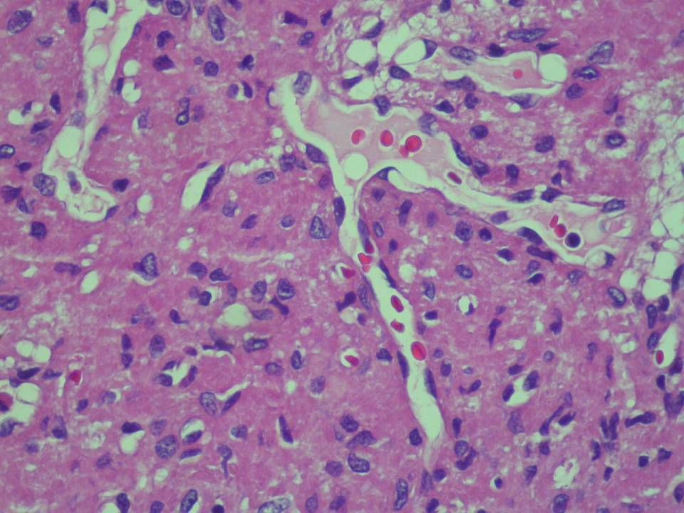CD34: negative S-100: negative Actin: negative Desmin: negative Cytokeratin: Negative FGF-23: not-available DDX: -Hemangiopericytoma -Glomus tumor -Smooth muscle tumor -Rhabdomyoma