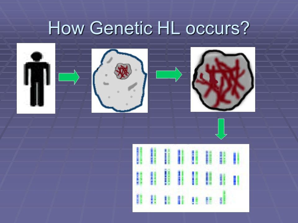 How Genetic HL occurs?