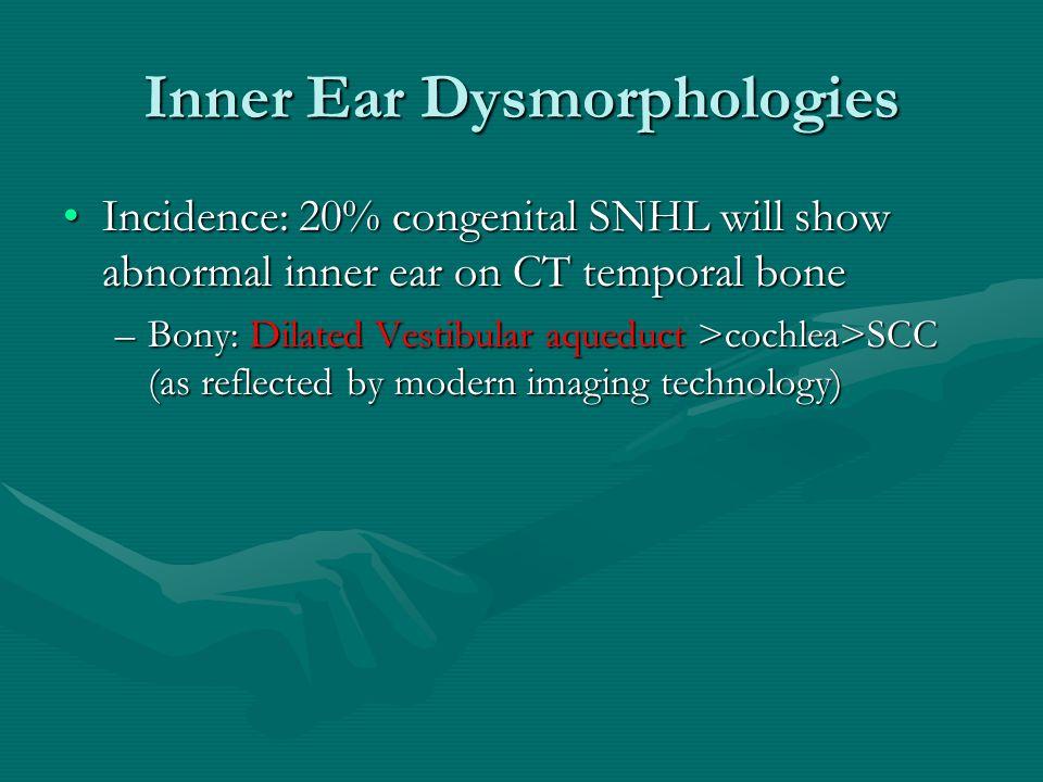 Inner Ear Dysmorphologies Incidence: 20% congenital SNHL will show abnormal inner ear on CT temporal boneIncidence: 20% congenital SNHL will show abno