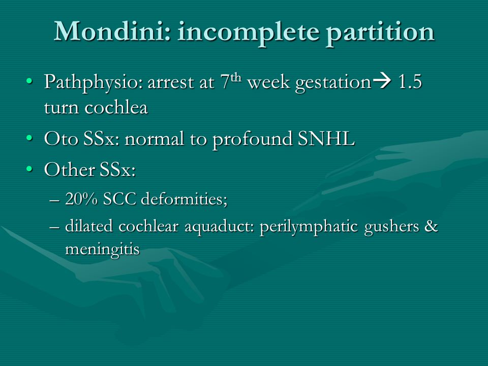 Mondini: incomplete partition Pathphysio: arrest at 7 th week gestation  1.5 turn cochleaPathphysio: arrest at 7 th week gestation  1.5 turn cochlea