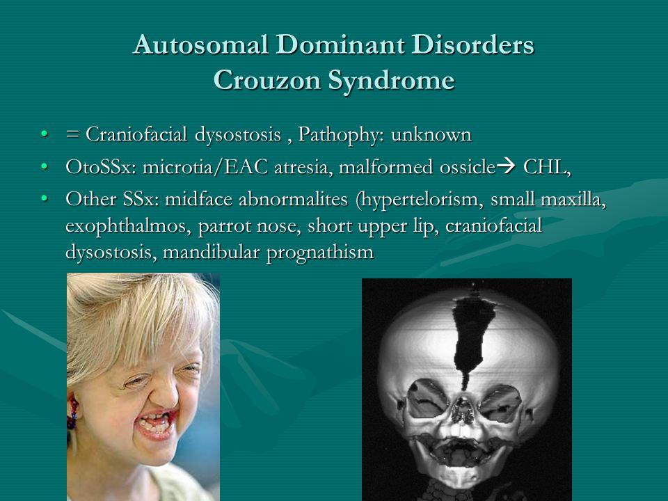 Autosomal Dominant Disorders Crouzon Syndrome = Craniofacial dysostosis, Pathophy: unknown= Craniofacial dysostosis, Pathophy: unknown OtoSSx: microti