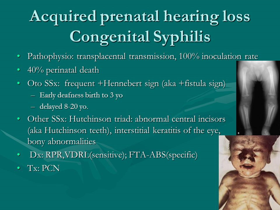 Acquired prenatal hearing loss Congenital Rubella Rare since vaccination (0-3 per year now in USA)Rare since vaccination (0-3 per year now in USA) Pathophysio: vasculitis resulting in tissue necrosisPathophysio: vasculitis resulting in tissue necrosis Oto SSx: B often asymmetric severe to profound SNHLOto SSx: B often asymmetric severe to profound SNHL Other SSx: growth delay, learning disability, congenital heart disease, and ocular, endocrinologic, and neurologic abnormalities.Other SSx: growth delay, learning disability, congenital heart disease, and ocular, endocrinologic, and neurologic abnormalities.