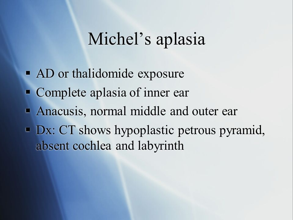 Michel's aplasia  AD or thalidomide exposure  Complete aplasia of inner ear  Anacusis, normal middle and outer ear  Dx: CT shows hypoplastic petro