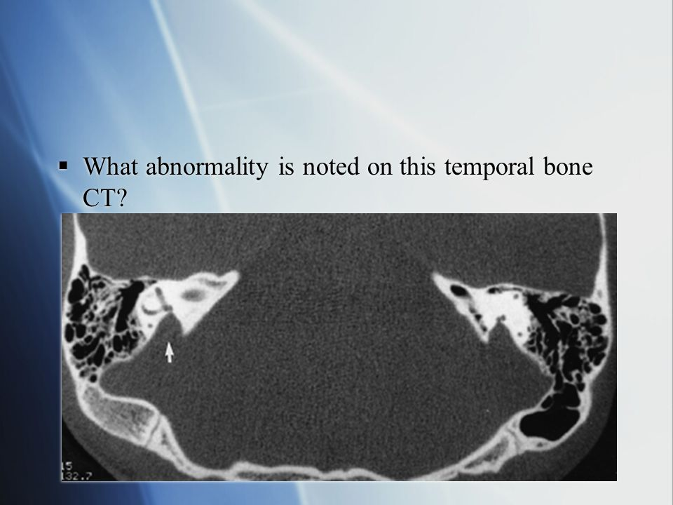  What abnormality is noted on this temporal bone CT?