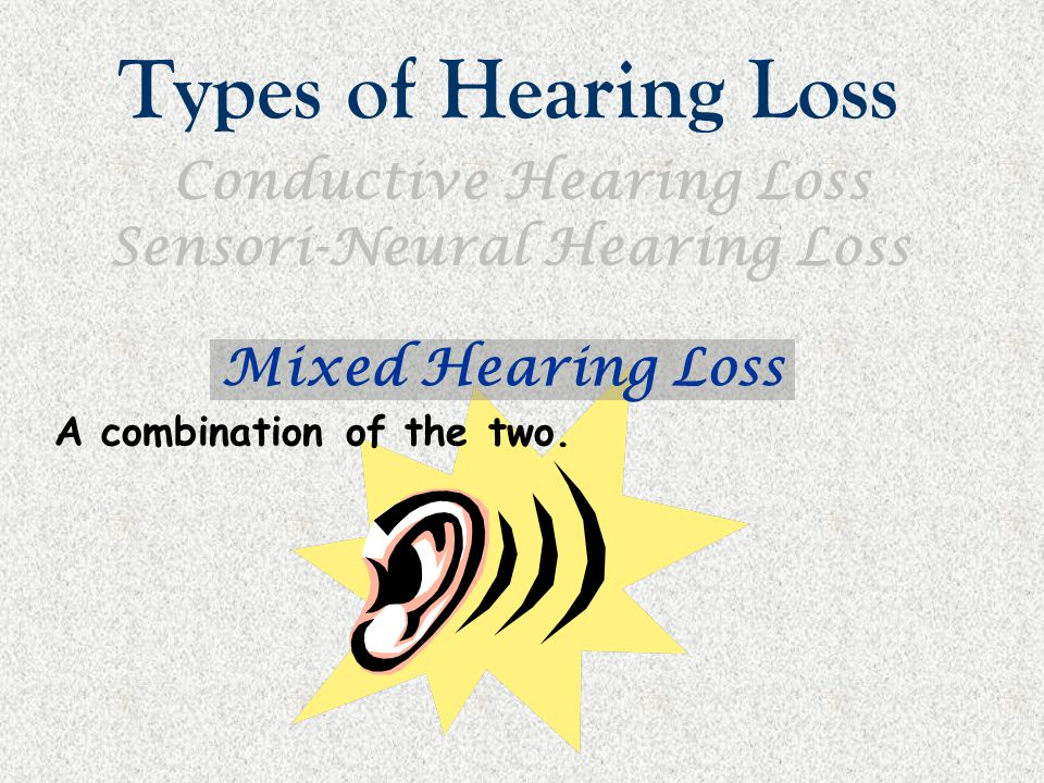 Types of Hearing Loss Conductive Hearing Loss Sensori-Neural Hearing Loss Mixed Hearing Loss A combination of the two.