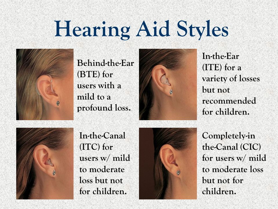 Hearing Aid Styles Behind-the-Ear (BTE) for users with a mild to a profound loss. In-the-Ear (ITE) for a variety of losses but not recommended for chi