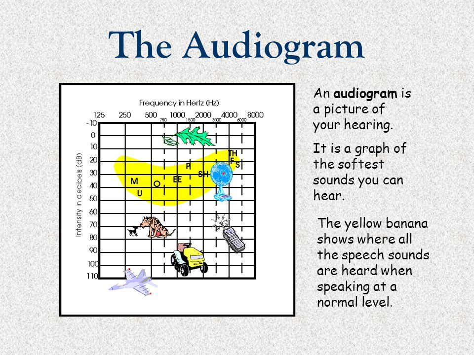 The Audiogram The softest sound you are able to hear is called your threshold.