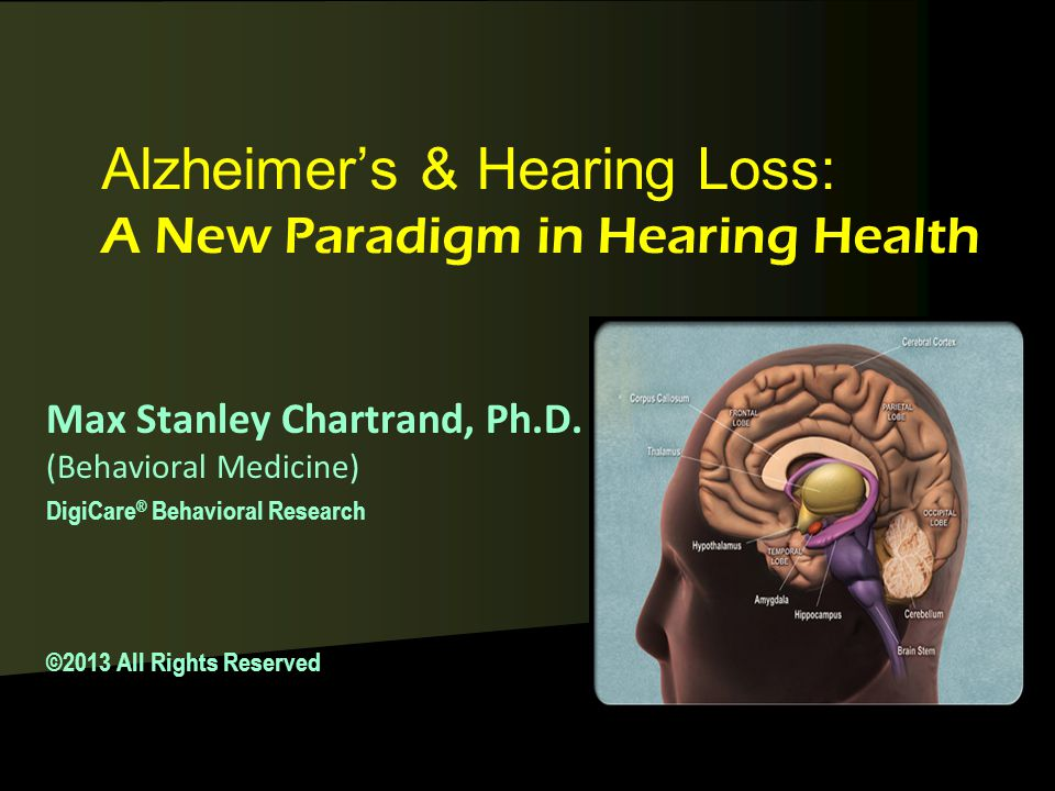 Alzheimer's & Hearing Loss: A New Paradigm in Hearing Health Max Stanley Chartrand, Ph.D.
