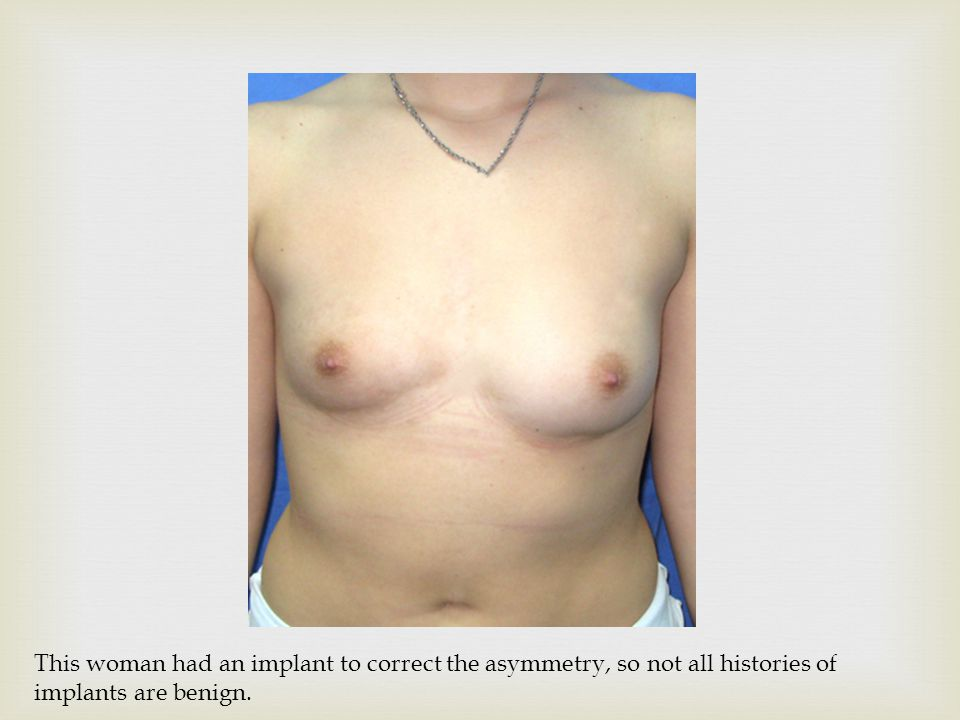 This woman had an implant to correct the asymmetry, so not all histories of implants are benign.