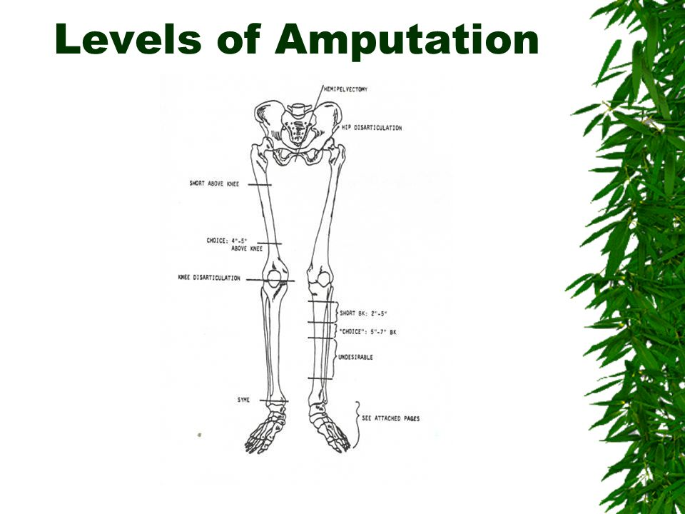 What is the level of Mr. Howard's amputation?  s/p transtibial amputation of ideal length