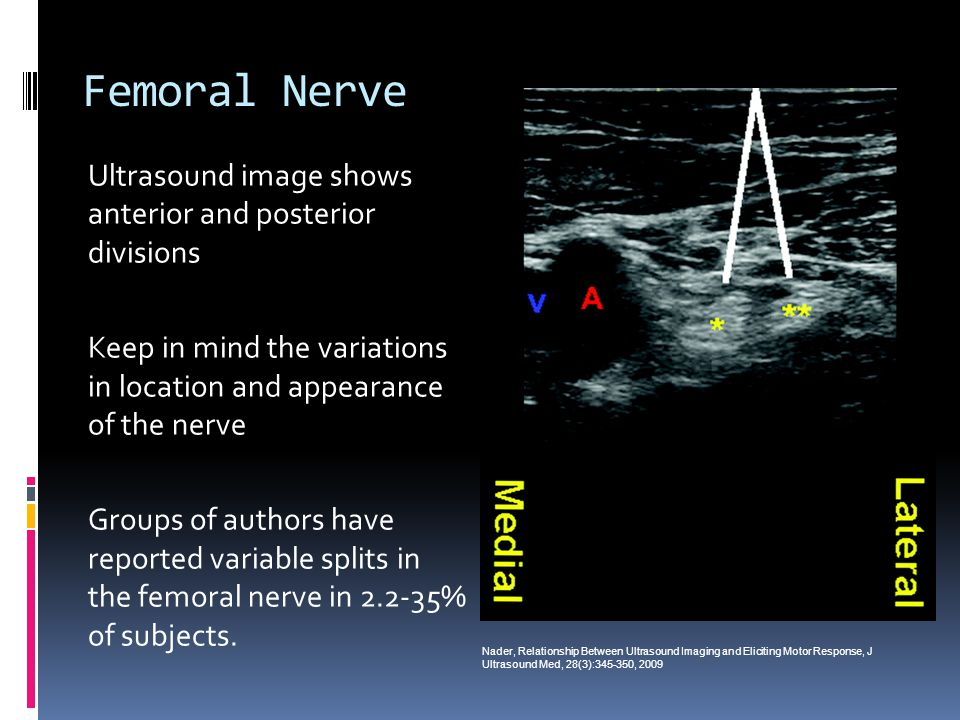 Femoral Nerve Ultrasound image shows anterior and posterior divisions Keep in mind the variations in location and appearance of the nerve Groups of authors have reported variable splits in the femoral nerve in 2.2-35% of subjects.