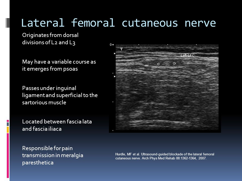 Lateral femoral cutaneous nerve Originates from dorsal divisions of L2 and L3 May have a variable course as it emerges from psoas Passes under inguinal ligament and superficial to the sartorious muscle Located between fascia lata and fascia iliaca Responsible for pain transmission in meralgia paresthetica Hurdle, MF et al.