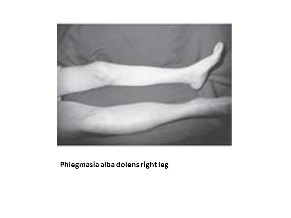 Phlegmasia alba dolens right leg