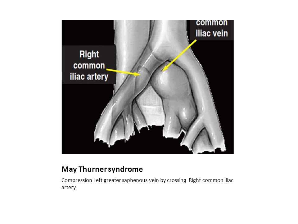 May Thurner syndrome Compression Left greater saphenous vein by crossing Right common iliac artery