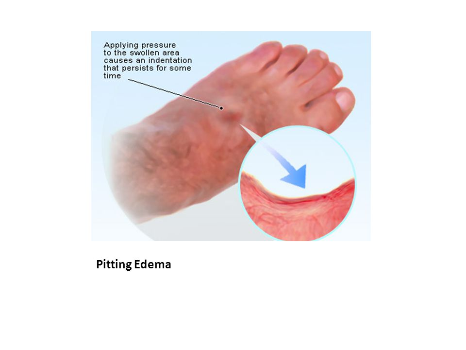 Pitting Edema