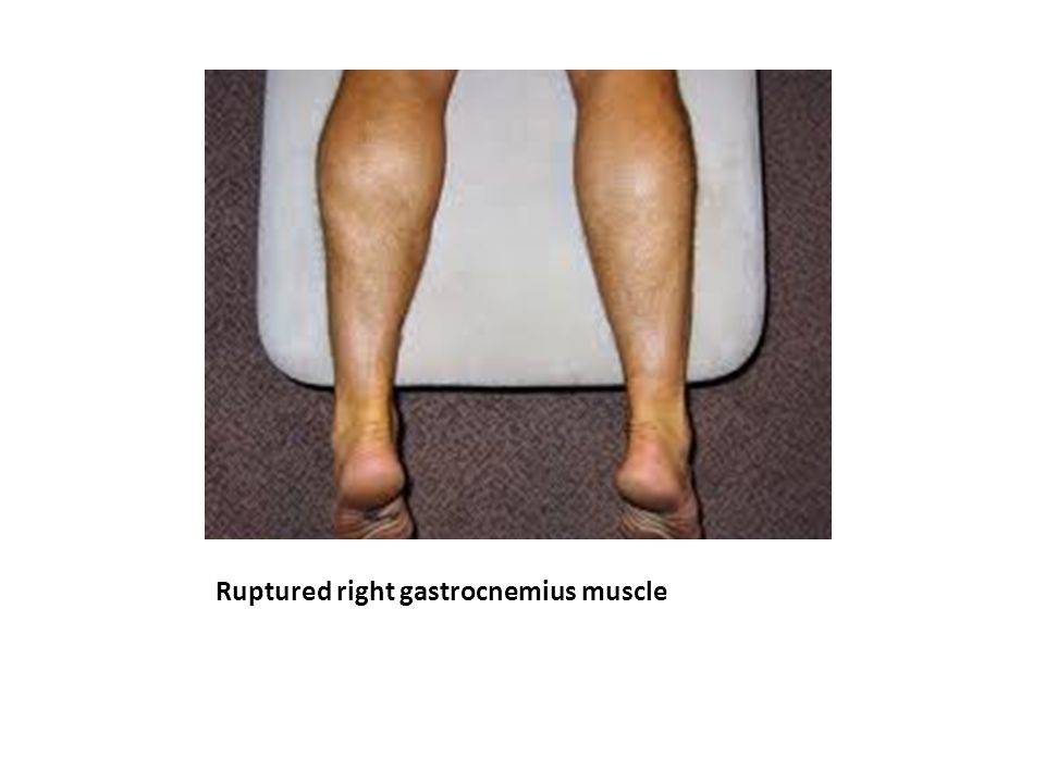 Ruptured right gastrocnemius muscle