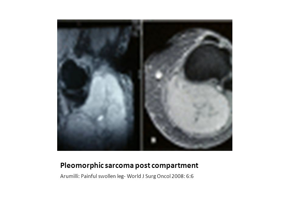 Pleomorphic sarcoma post compartment Arumilli: Painful swollen leg- World J Surg Oncol 2008: 6:6