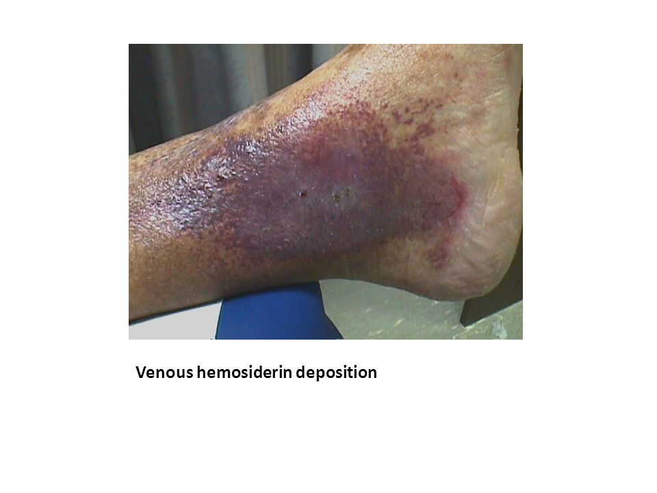 Venous hemosiderin deposition