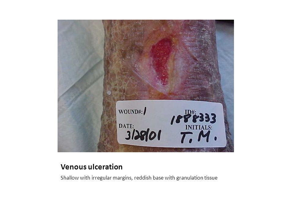 Venous ulceration Shallow with irregular margins, reddish base with granulation tissue