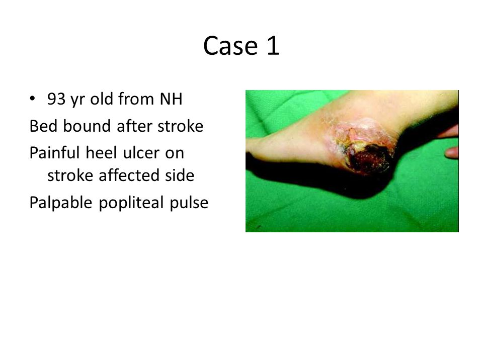 Case 1 93 yr old from NH Bed bound after stroke Painful heel ulcer on stroke affected side Palpable popliteal pulse