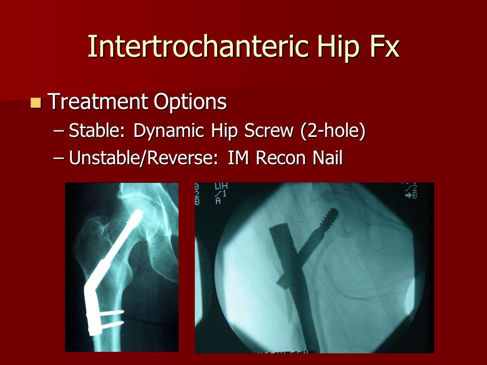 Treatment Options Treatment Options –Stable: Dynamic Hip Screw (2-hole) –Unstable/Reverse: IM Recon Nail