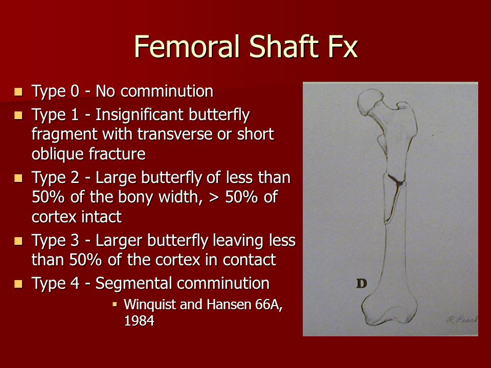 Femoral Shaft Fx Type 0 - No comminution Type 0 - No comminution Type 1 - Insignificant butterfly fragment with transverse or short oblique fracture T