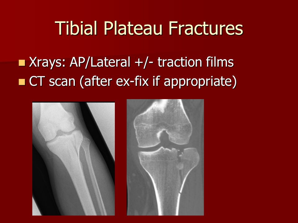 Tibial Plateau Fractures Xrays: AP/Lateral +/- traction films Xrays: AP/Lateral +/- traction films CT scan (after ex-fix if appropriate) CT scan (afte