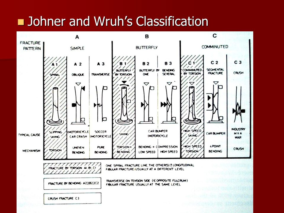 Johner and Wruh's Classification Johner and Wruh's Classification