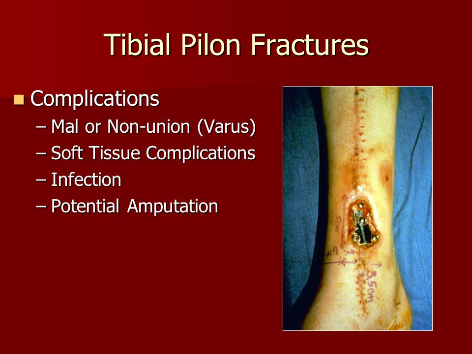 Tibial Pilon Fractures Complications Complications –Mal or Non-union (Varus) –Soft Tissue Complications –Infection –Potential Amputation
