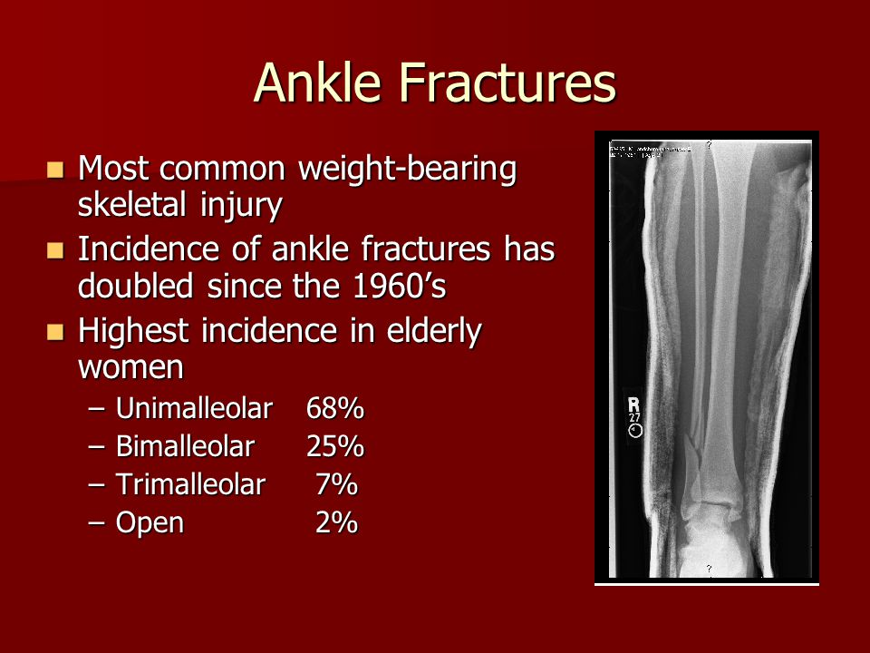 Ankle Fractures Most common weight-bearing skeletal injury Most common weight-bearing skeletal injury Incidence of ankle fractures has doubled since t