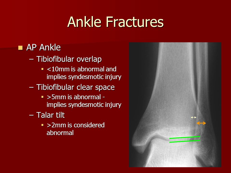 AP Ankle AP Ankle –Tibiofibular overlap  <10mm is abnormal and implies syndesmotic injury –Tibiofibular clear space  >5mm is abnormal - implies synd
