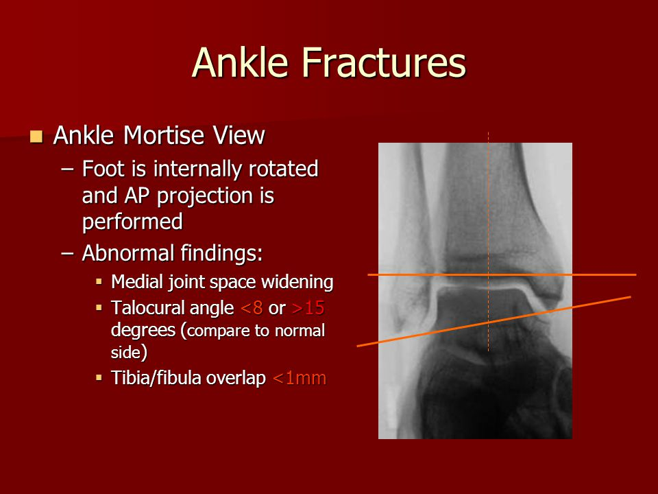 Ankle Mortise View Ankle Mortise View –Foot is internally rotated and AP projection is performed –Abnormal findings:  Medial joint space widening  T