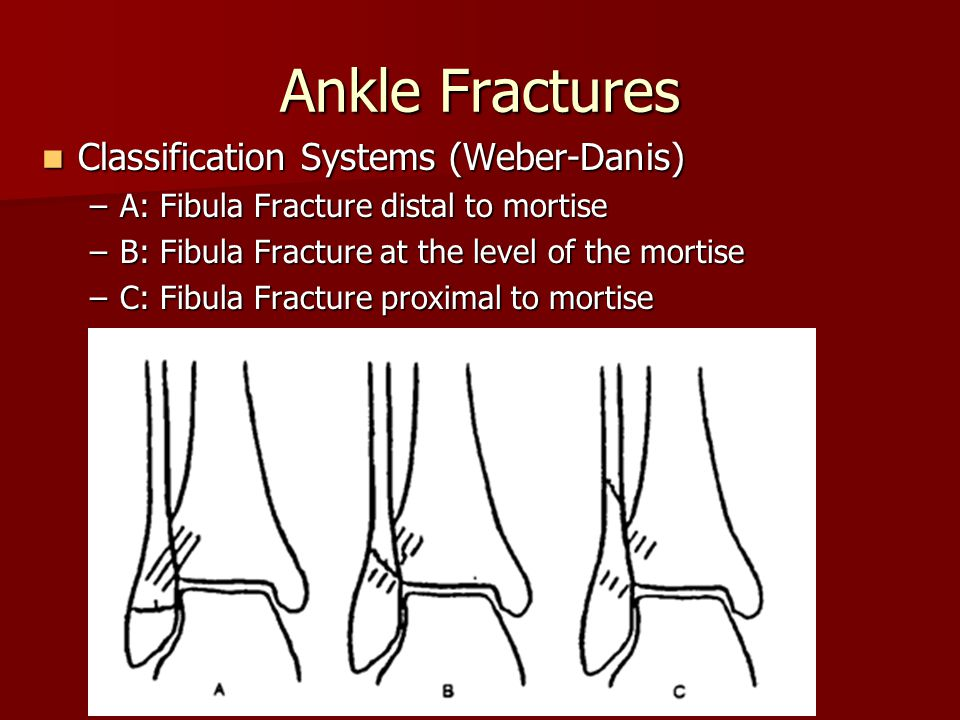 Ankle Fractures Classification Systems (Weber-Danis) Classification Systems (Weber-Danis) –A: Fibula Fracture distal to mortise –B: Fibula Fracture at
