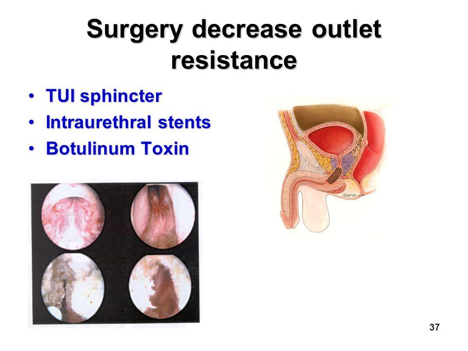 37 Surgery decrease outlet resistance TUI sphincterTUI sphincter Intraurethral stentsIntraurethral stents Botulinum ToxinBotulinum Toxin