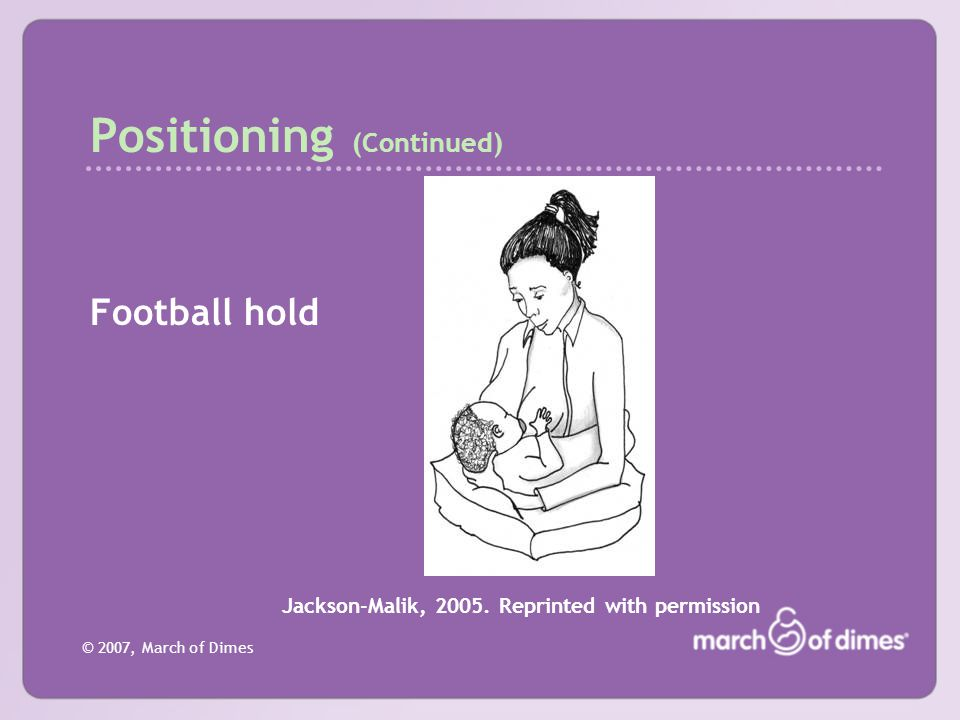 © 2007, March of Dimes Positioning (Continued) Football hold Jackson-Malik, 2005. Reprinted with permission