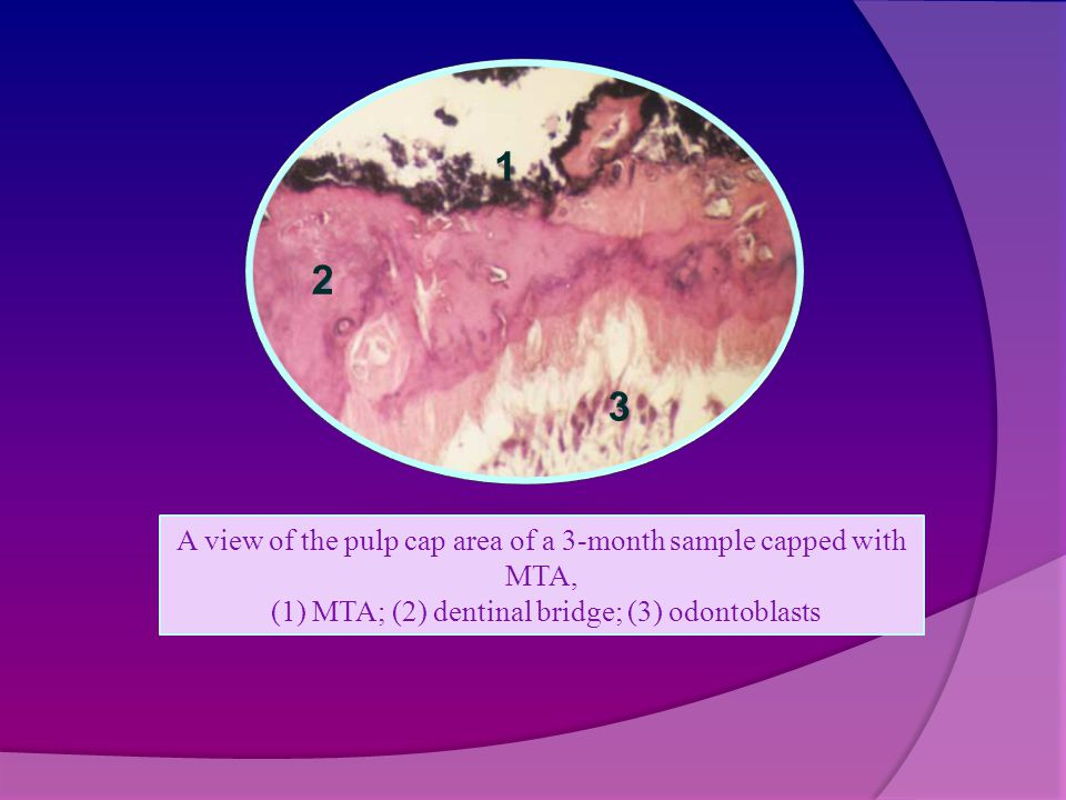 A view of the pulp cap area of a 3-month sample capped with MTA, (1) MTA; (2) dentinal bridge; (3) odontoblasts 1 2 3