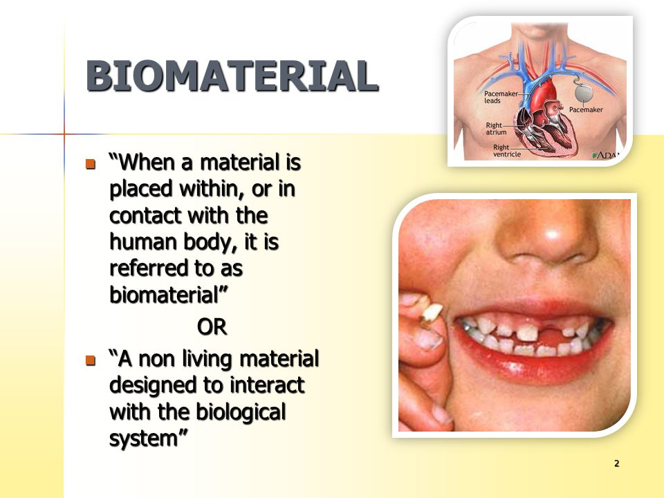 13 MEASURING BIOCOMPATIBILITY OF DENTAL MATERIALS Biological response is related to the use of a material.