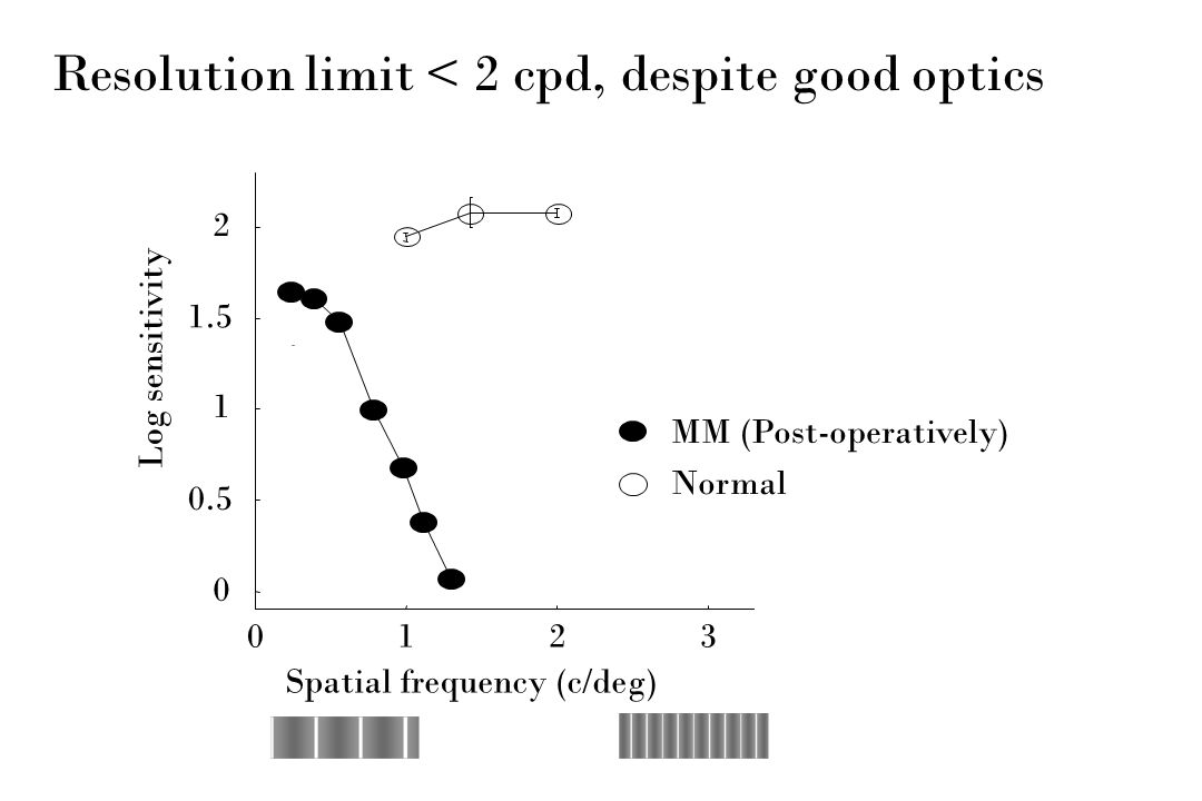 Resolution limit < 2 cpd, despite good optics 0123 0 0.5 1 1.5 2 Spatial frequency (c/deg) Log sensitivity MM (Post-operatively) Normal