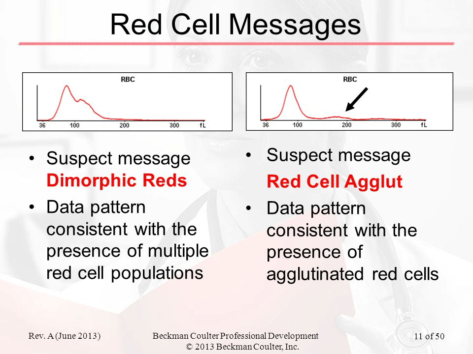 Rev. A (June 2013)Beckman Coulter Professional Development © 2013 Beckman Coulter, Inc. 11 of 50 Red Cell Messages Suspect message Dimorphic Reds Data
