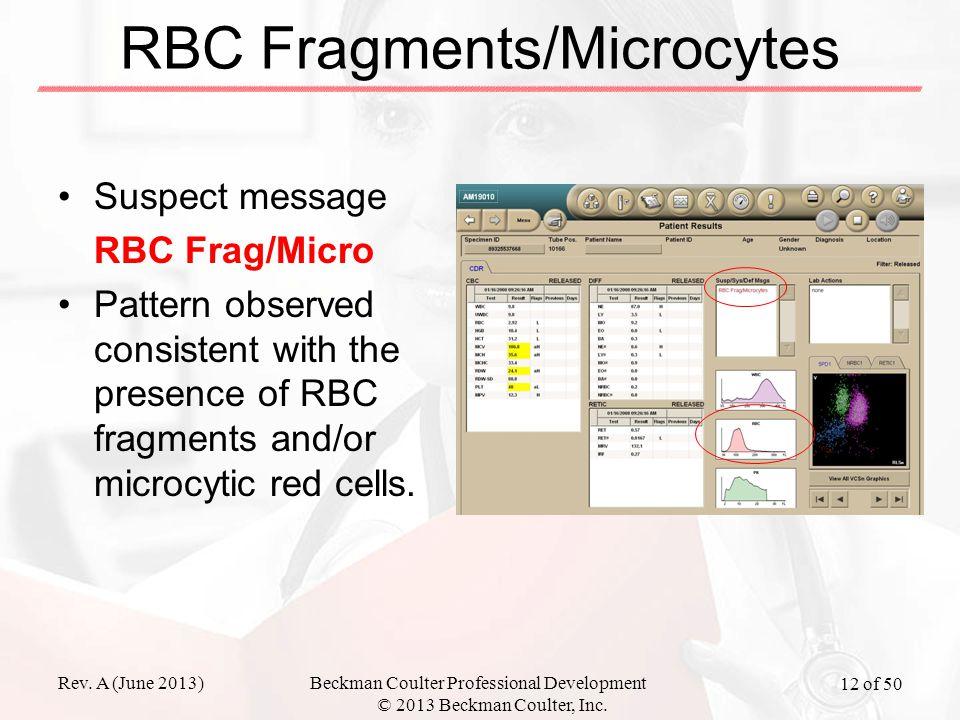 Rev. A (June 2013)Beckman Coulter Professional Development © 2013 Beckman Coulter, Inc. 12 of 50 RBC Fragments/Microcytes Suspect message RBC Frag/Mic