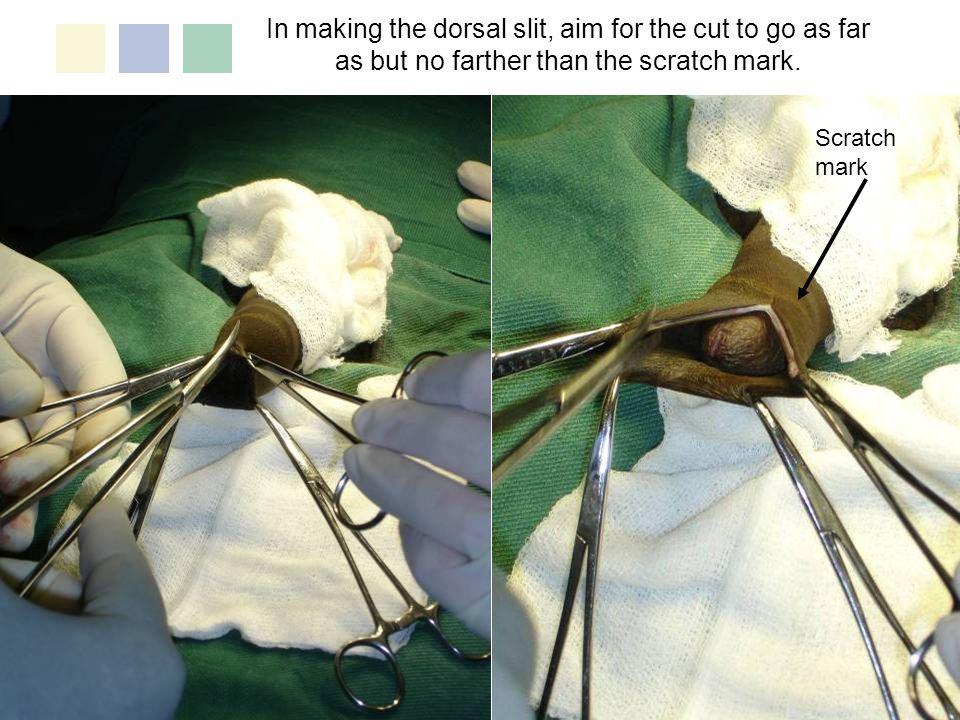 Dorsal Slit Method: Step 8 Using dissection scissors, cut the foreskin free along the previously marked circumcision line.