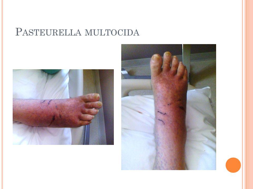 P ASTEURELLA MULTOCIDA
